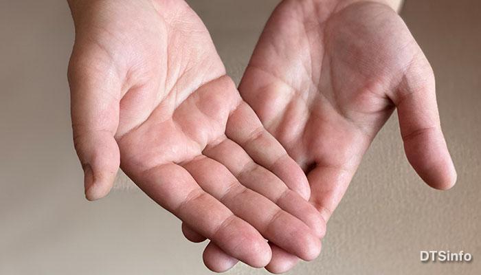Почему потеют руки